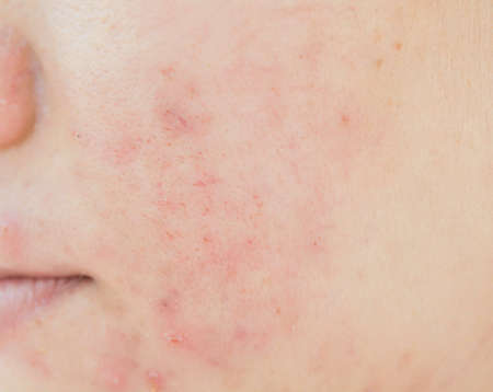 Acne and from scar on face