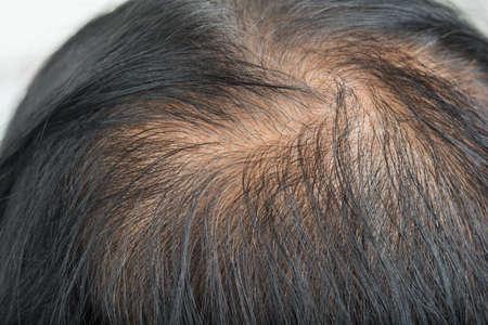 Thin hair and scalp and broken hair