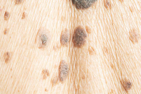 freckles on the skin and  Dermatitis and itching Standard-Bild