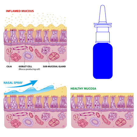Inflamed and normal nasal mucosa cells and micro cilia vector scheme with nasal spray effect and bottle