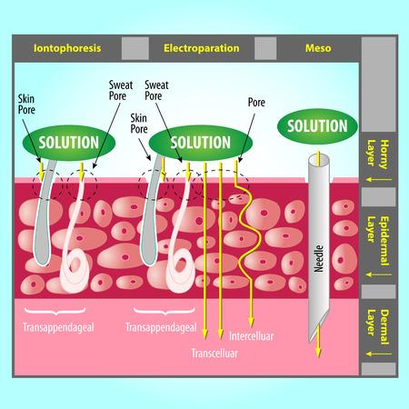 Illustration of Transdermal Delivery Skin Pore Mechanism  イラスト・ベクター素材