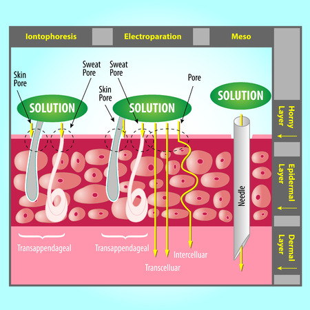 pore: Illustration of Transdermal Delivery Skin Pore Mechanism Illustration
