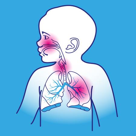 aparato respiratorio: Ilustración vectorial de un niño del Sistema Respiratorio Órganos