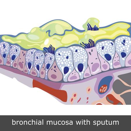 Structuur van beschadigde slijmvlies van de bronchiën met sputum, vector illustratie Stock Illustratie