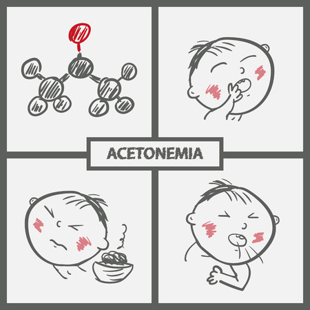 Child with acetonemia symptoms and the acetone molecule. Illustration