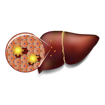 Medical illustration of healthy liver cells attacked by toxins