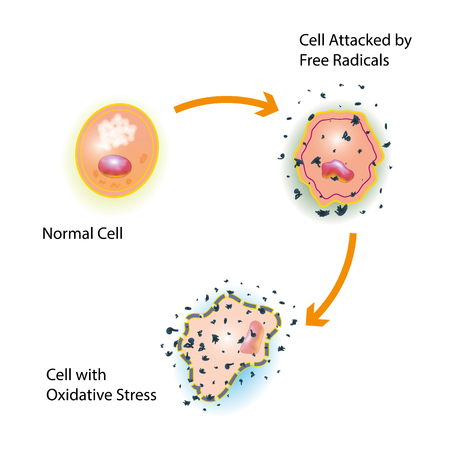 Estrés oxidativo de una célula sana causada por un ataque de radicales libres Foto de archivo - 76371895