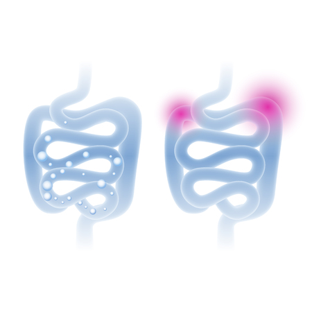 Abstract medical illustration of healthy and sick intestine in a light blue color