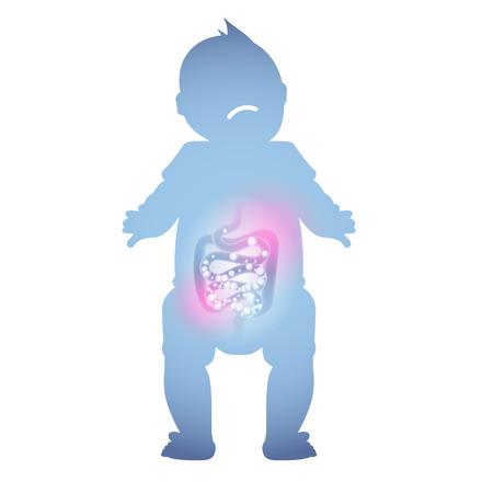 Abstrakte Darstellung eines kranken Babydarms. Kranke Verdauung eines Kindes. Vektorgrafik