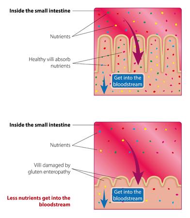 Aufnahme von Nährstoffen im Dünndarm. Gesunde und beschädigte Zotten. Medizinische Vektorillustration