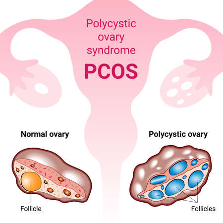 Polycystic ovary syndrome PCOS, hormonal diagnose, abnormal cancer fertility cysts. Medical vector illustration