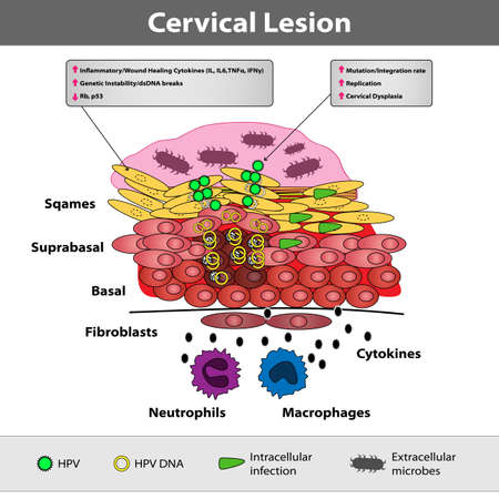 A precancerous cervical lesion. Abnormal cervical appearance. Squamous and glandular cells. Medical vector illustration