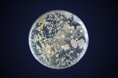 petri dish: Bacteria growing in a petri dish