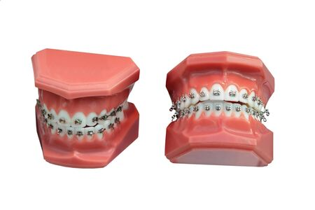 cavity braces: models of a jaw of the person for training of installation of briquettes in stomatology