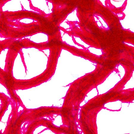 BACTEC MGIT960 媒体から AFB コード形成 Ziehl-neelsen 染色 写真素材
