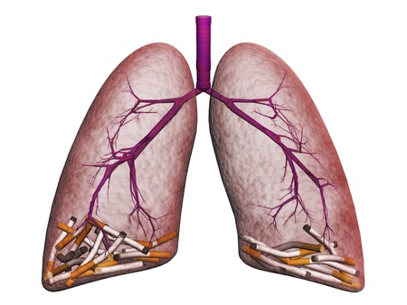 asthmatic: smokers lungs on a white background Stock Photo