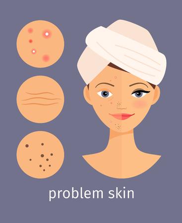 Concepto de la piel del problema. Señora joven con la ilustración vectorial irritación de la piel