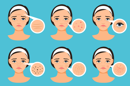 Female face with skin problems vector illustration. Woman with problem areas Çizim