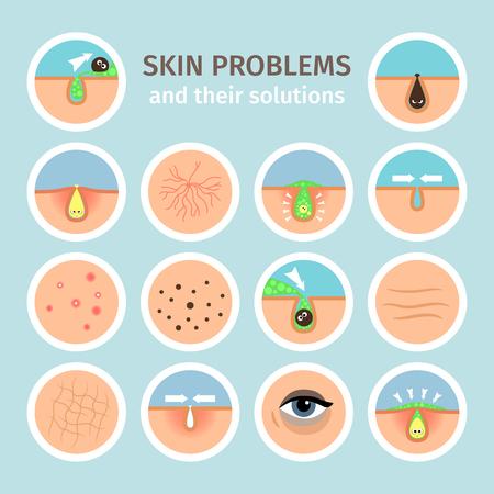 Problemas de la piel. Tratamientos faciales, lavado de cara y la ilustración de vector de corrección de problema