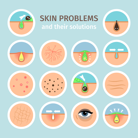 Skin problems. Facial treatments, face washing and problem correction vector illustration Illustration