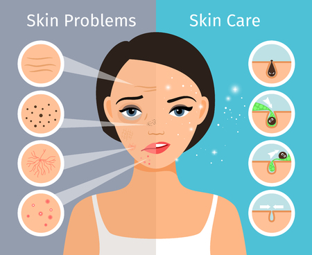 oily: Home facial skin clean and oily, care and cosmetology, female head with beautiful skin problems solution illustration.