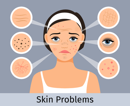 Beauty and freshness of the woman face vector illustration. Girl with skin spots, pimples and wrinkles Vettoriali