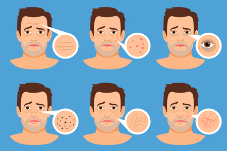 Man skin problems vector illustration. Male face with pimples and dark spots, wrinkles and acne Illustration
