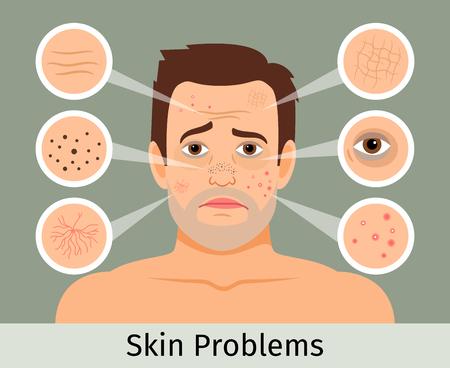 Mannelijke gezichtshuid problemen vector illustratie. Acne en donkere vlekken, rimpels en kringen onder de ogen voor cosmeticawebsites