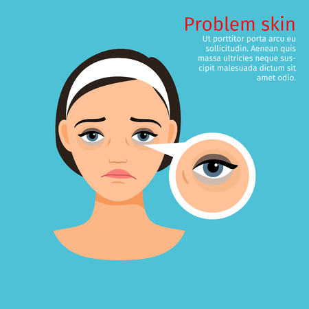Woman face problem skin with black circles under the eyes, vector illustration
