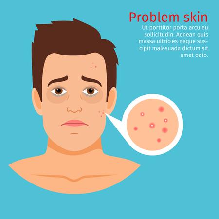 Hombre joven frente a la piel problema con acné, ilustración vectorial Ilustración de vector