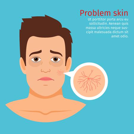 묻혀있는 모세 혈관, 벡터 일러스트와 젊은 남자 얼굴 문제 피부 일러스트