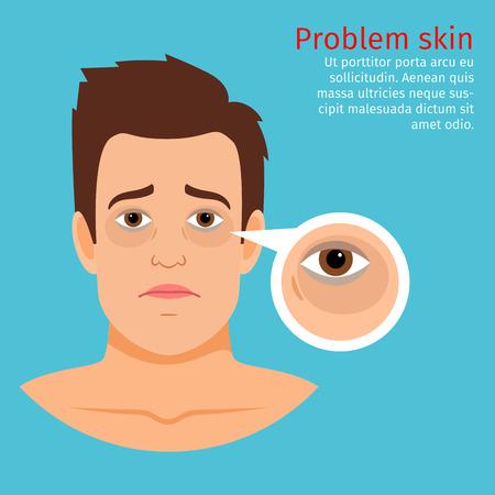 Jonge man gezicht probleem huid met zwarte cirkels onder de ogen, vector illustratie Vector Illustratie