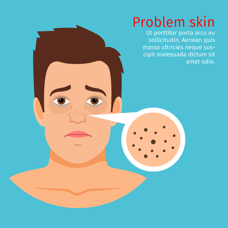 Young man face problem skin with black dots, vector illustration