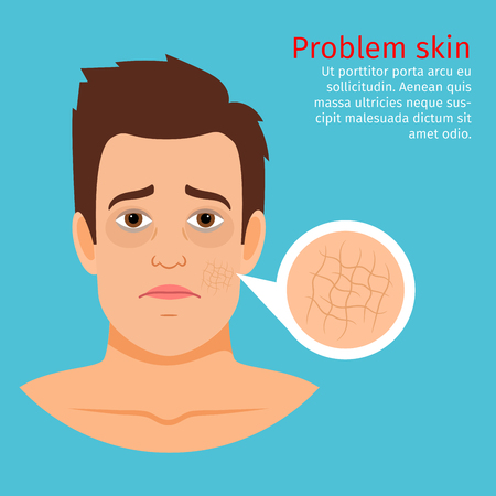 Young man face with dry skin problem, vector illustration