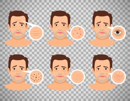 Illustration de problèmes de peau de l'homme.