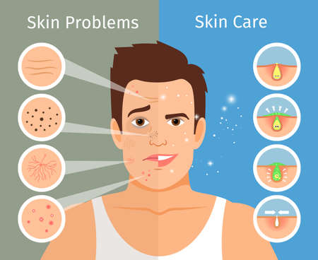 Male face skin treatment vector illustration. Young man portrait with beautiful and troubled facial skins Vector Illustratie