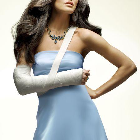 fractura: bella mujer que hab�a roto el brazo