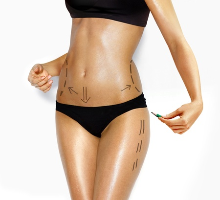 correction lines: attractive Caucasian womans abdomen and legs marked with lines for abdominal cellulite correction cosmetic surgery