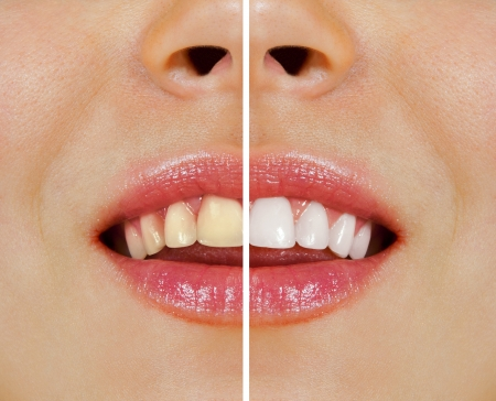 dental care: woman teeth before and after whitening