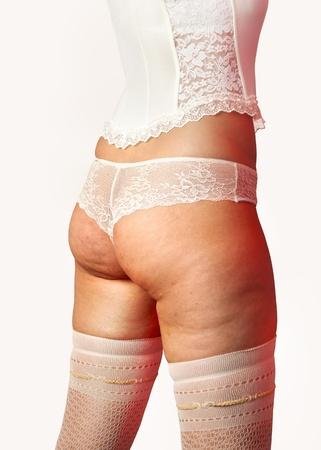 mujer fea: Primer plano de las nalgas de la mujer con la celulitis Foto de archivo