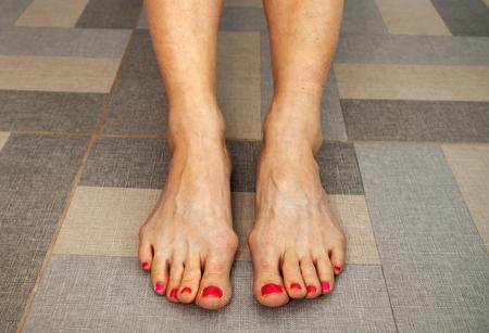 peeling of skin on feet Stockfoto