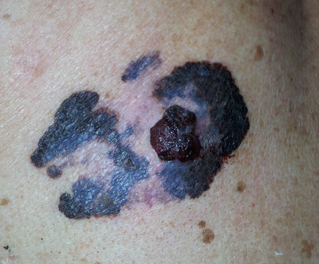 Malignat melanoma, cancer of skin Stock Photo