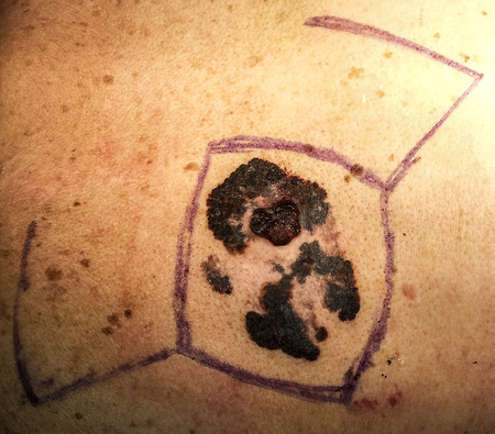 malignant growth: Malignant melanoma, cancer of the skin, preoperatory Stock Photo