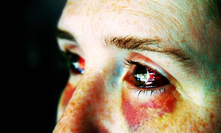 An abused woman with black and blue and bloody eyes