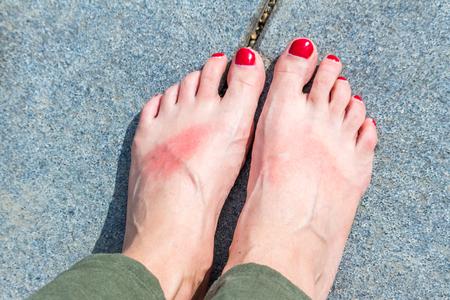 Sunburn on the feet Stock Photo