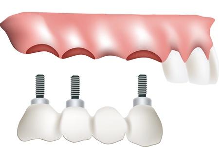 dentadura postiza: dientes implante falso Vectores