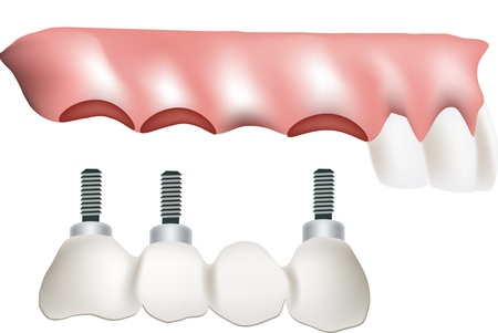 false teeth implant