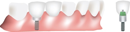 dental implants: dental prosthesis Illustration