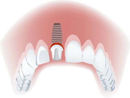 Dental implants dental implant