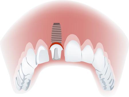 ceramic: Implantes dentales implantes dentales